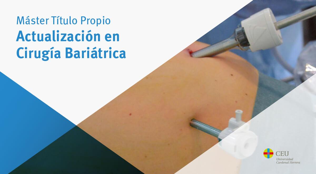 Actualizacion en cirugia bariatrica