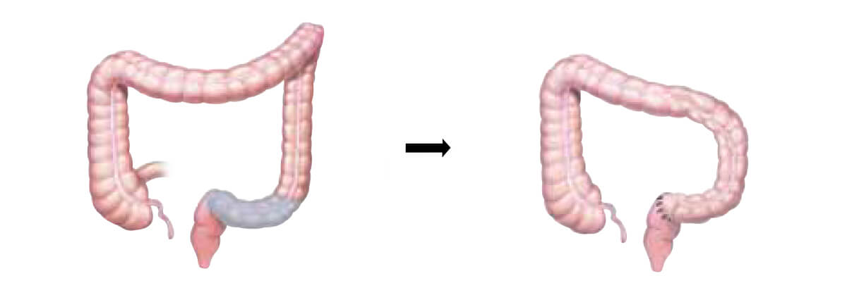 Colectomia sigmoide
