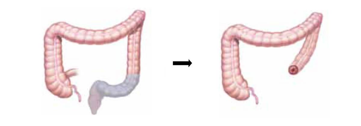 Resección perineal abdominal