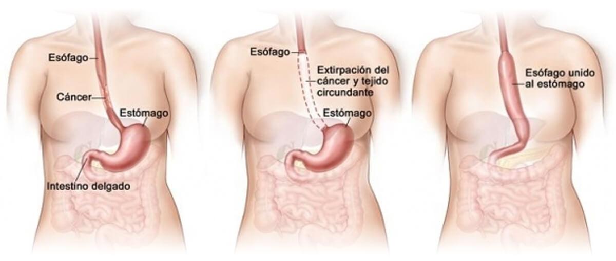 Cirugía Laparoscópica del cáncer de esófago img1