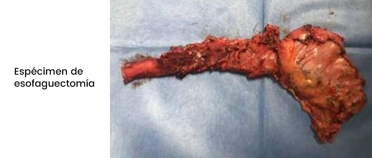 Cirugía Laparoscópica del cáncer de esófago img2