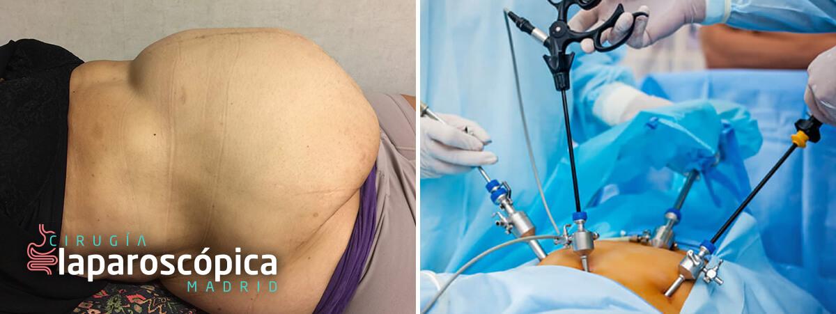 Tratamiento pared abdominal: enventraciones
